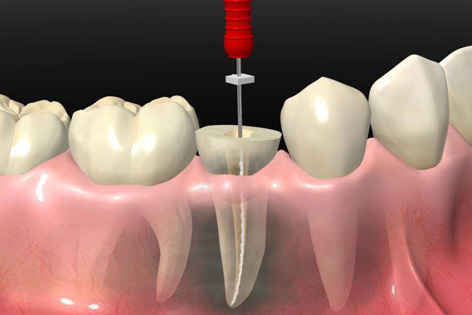 clinica dental fuengirola, endodoncia fuengirola